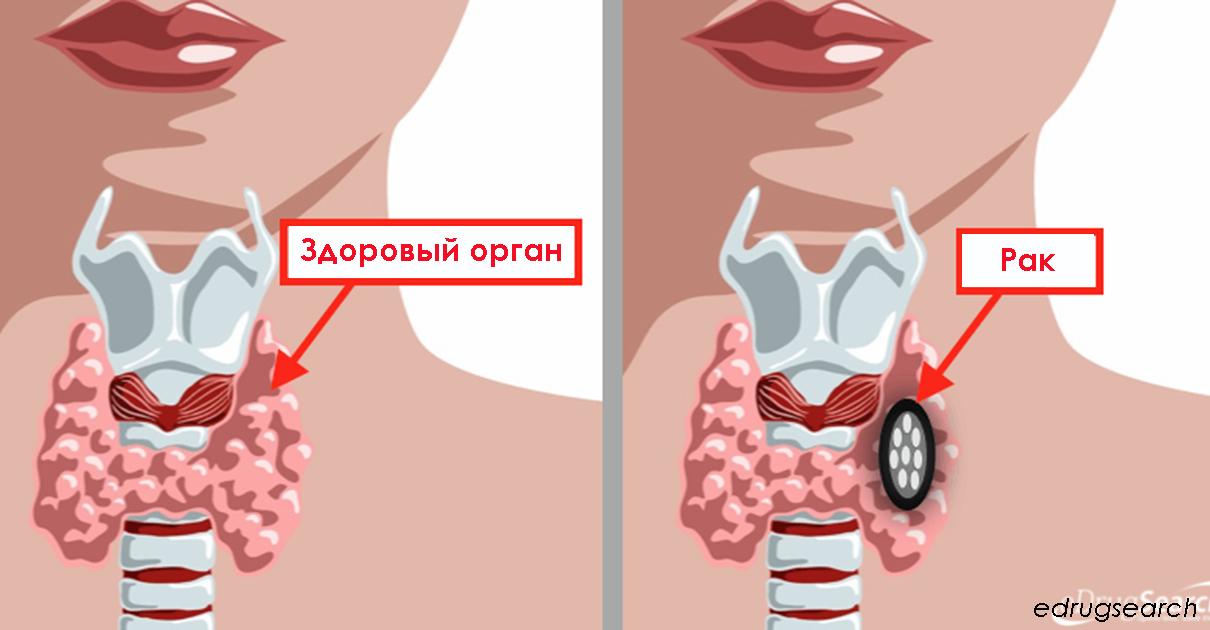 30 симптомов хронического расстройства щитовидной железы Обратите внимание!